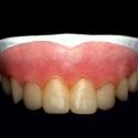 特殊メイク用義歯